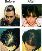 Viviscal Before and after